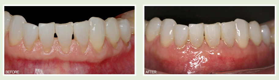 Metal Free Dental Implants